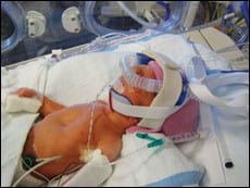 All's Quiet in the NICU: Infant RDS