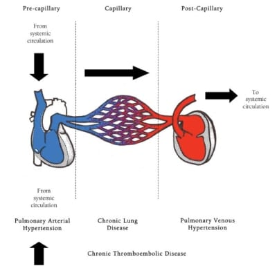 Pulmonary Hypertension and the Respiratory Therapist's Role in Diagnosis and Treatment