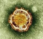 Antivirals Hold Promise for Treatment of Coronavirus