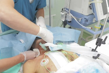 Early Tracheostomy Not Associated with Improved Survival