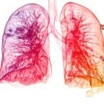 Promising Treatment for Acute Respiratory Distress Syndrome