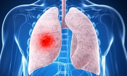 Younger Age Linked with Odds of Targetable Genotype in Lung Cancer