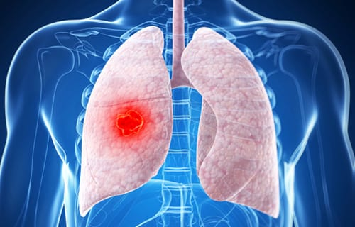 Hormone Therapy Linked to Improved Lung Cancer Survival in Women