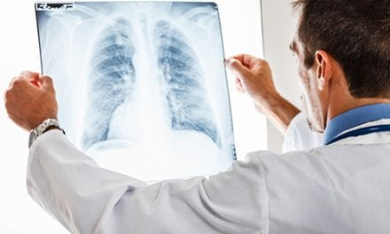 New Guidelines for Treating Idiopathic Pulmonary Fibrosis