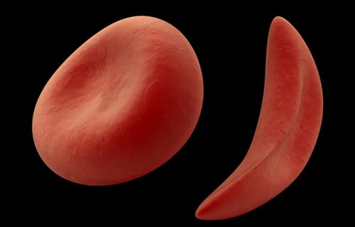 Oxbryta FDA-approved for Sickle Cell Disease