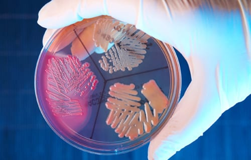 New Predatory Bacteria Detected in CF Patient Lungs