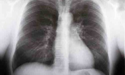 Comorbidities Increase Risk for Lung Cancer Mortality