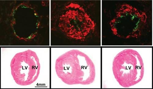 Protein in 'Good Cholesterol' May Be Key to Treating Pulmonary Hypertension