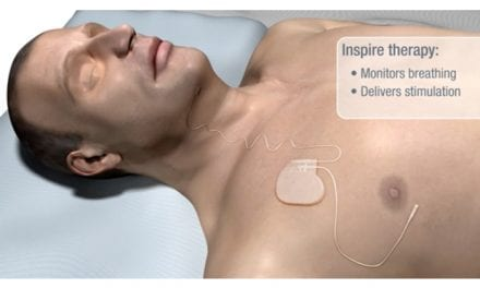 USC Medical Center First in LA to Offer Sleep Apnea Implant
