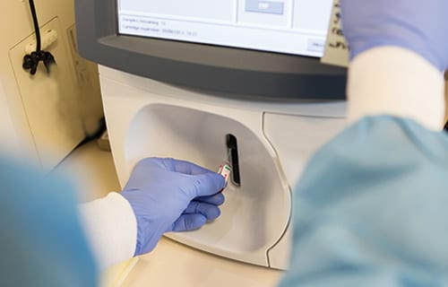 Partnership Focuses on NGS-Blood Based Tests for Advanced Lung Cancer Patients