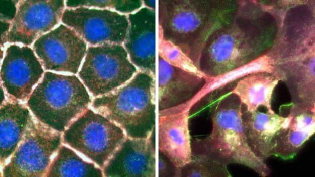 Images Reveal How Lung Cancer Cells Spread