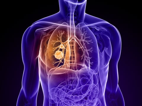 Combined Stereotactic Body Radiation Therapy Improves Survival Rates for Lung Cancer Patients