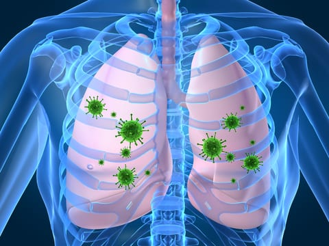 Bronchiectasis Infections May Be Linked to Impaired Activity by Neutrophils
