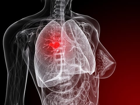 FDA Expands Crizotinib to Treat NSCLC with ROS-1 Mutation
