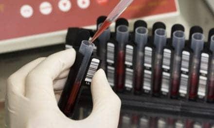 DNA Blood Test May Detect EGFR Lung Cancer Mutation