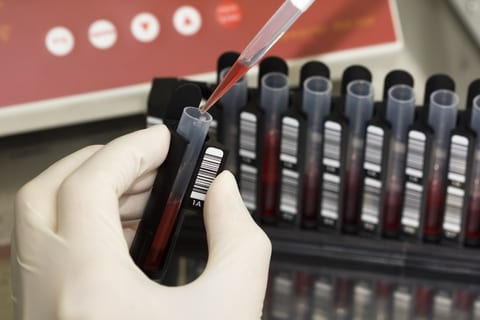 DNA Blood Test May Detect EGFR Lung Cancer Mutation