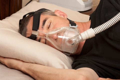 Sleep Apnea Prevalent in Patients with Asymptomatic Carotid Stenosis