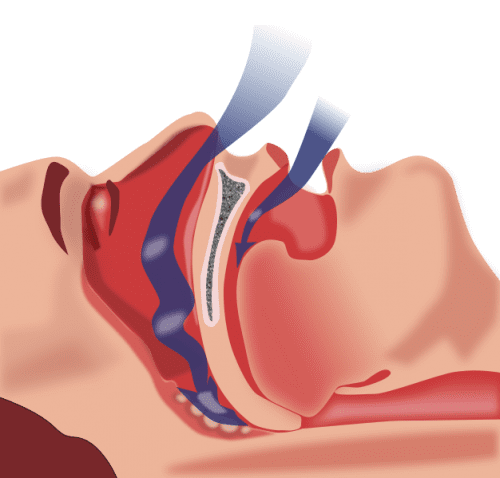 CPAP Linked to Lower Atrial Fibrillation Recurrence in OSA Patients