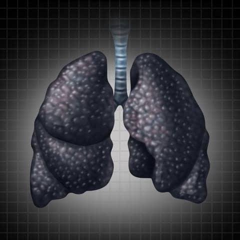 New 3D-Imaging Technique Reveals How Pulmonary Fibrosis Develops