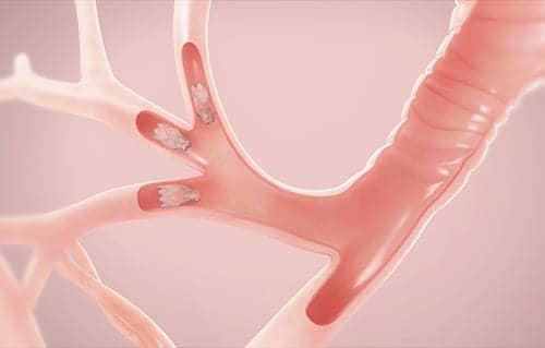 Positive Outcomes for Emphysema Patients Using Endobronchial Valves