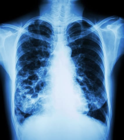 Bronchiectasis Linked to Lower Risk of Lung Cancer in COPD Patients