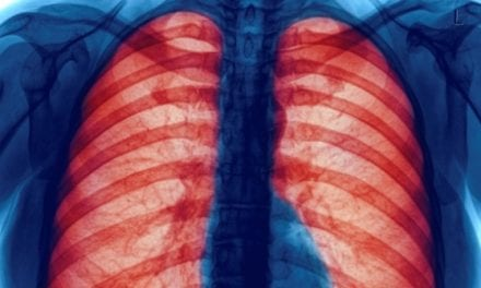 New Trial to Test Herb-based Treatment for COPD