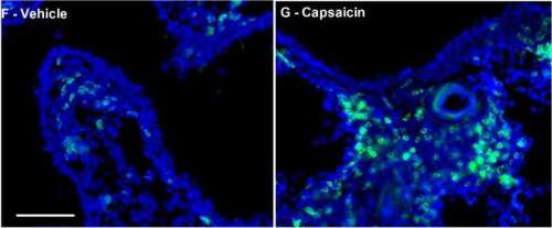 Targeting Nerve Endings to Curb Allergic Asthma