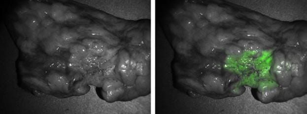 Live Imaging of Lung Cancer Cells During Surgery Improves Precision