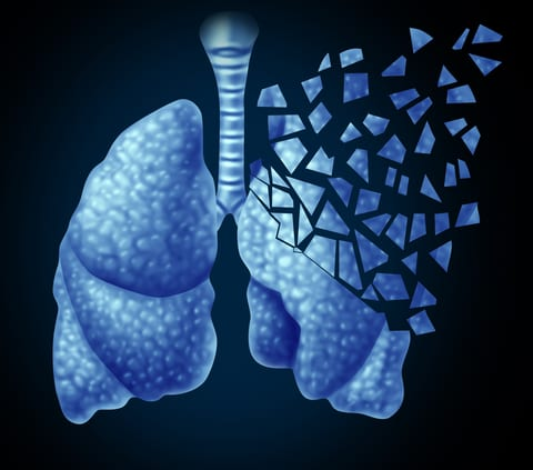 Alternative Medicine Remains Unproven for Allergies, Asthma