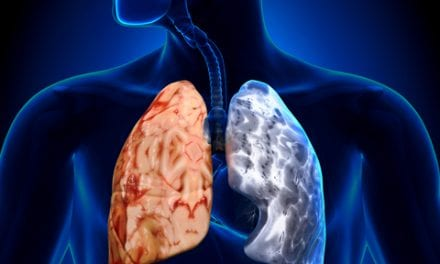 Risk of COPD May Already Occur in Adolescence