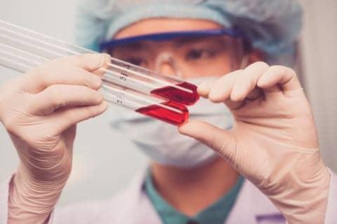 Blood Lipid Levels in Children Correlate with Asthma, Allergies