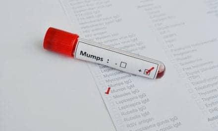 Mumps Outbreak Centered at University of Illinois