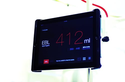 Gauss Raises $3.3M for Real-time Surgical Blood Loss Monitor