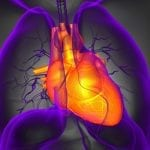Pulmonary Embolism Treatment Widely Used, Despite Uncertain Benefit