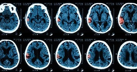 Use of Airway Pressure Release Ventilation in a Patient with Intracranial Hemorrhage