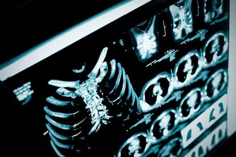 Lung Cancer Screening Rules Nearly Align