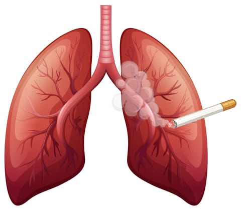 Smokers with COPD Have Elevated Risk of Developing Lung Cancer