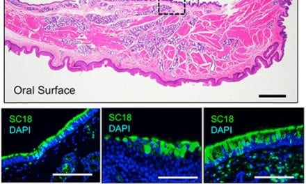 Soft Palate a 'Key Site' for Emergence of Airborne Flu Viruses