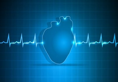 Larger Women May Have Greater Risk of Atrial Fibrillation