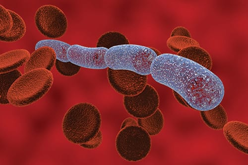 Effective Monitoring of Patients with Sepsis