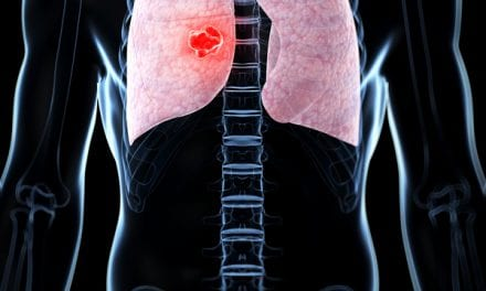 IMRT Linked to Better Tolerance of Chemotherapy in Lung Cancer Patients