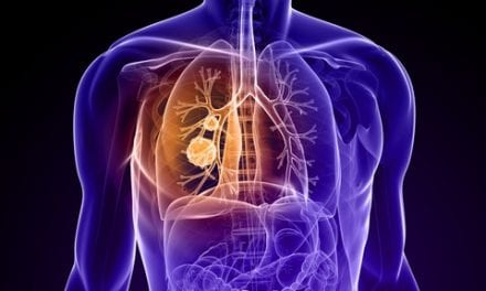 Some NSCLC Patients May Benefit from Delayed Chemo Post-Surgery