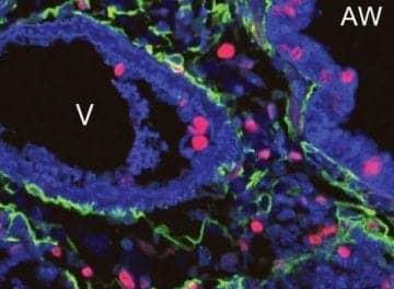 'Sonic Hedgehog' Gene Maintains Repair Process of Adult Lungs