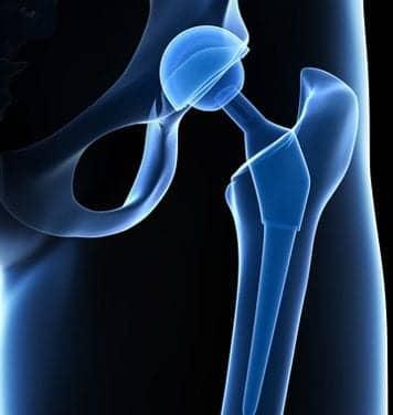FDA OKs Pradaxa for DVT, PE Prevention After Hip Surgery