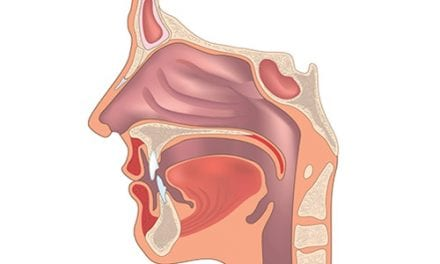 Dupilumab Successful Treating Severe Chronic Rhinosinusitis with Nasal Polyps