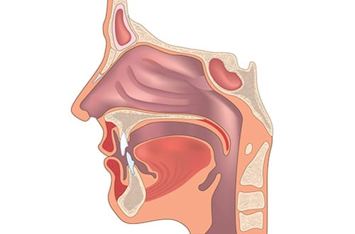 Implant Eases Sleep Apnea Symptoms