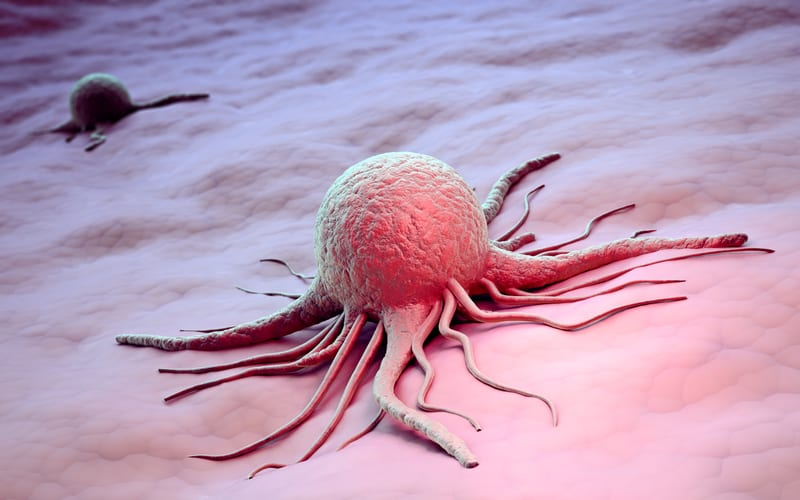 NSCLC Can Be Sorted in Clusters by Endocytic Changes
