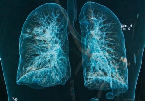 ALS: Long-term NIV May Decrease QOL