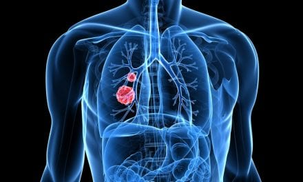 Stage Increase in Lung Cancer More Frequent After Open vs Closed Thoracic Surgery