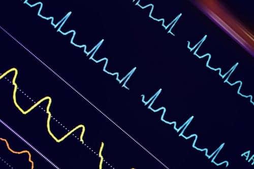 Dräger, Ascom Partner on Patient Monitoring